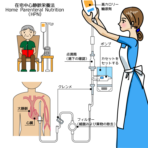 中心静脈栄養法2